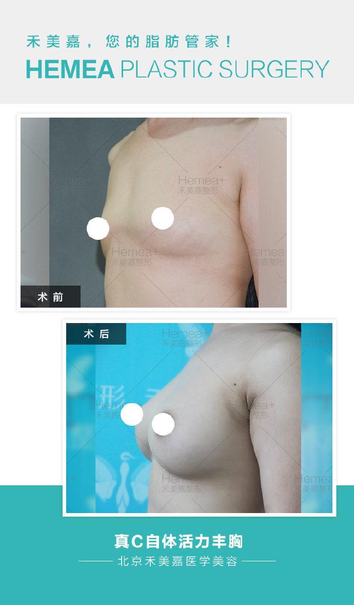 全脸脂肪填充失败图片
