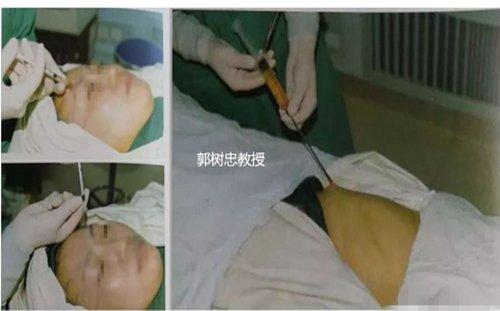治疗大小脸可以用脂肪移植的方法吗-联合丽格第一医院郭树忠教授