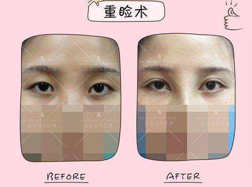 北京双眼皮整形医生纪柳