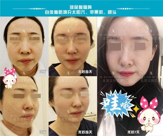 免费整形第一季报名开始啦——北京艾玛整形(自体脂肪丰面、丰胸)