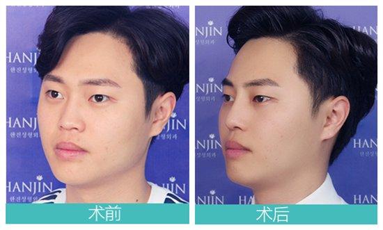远离失真假鼻,武汉韩辰整形助你打造韩式高颜值自然美鼻