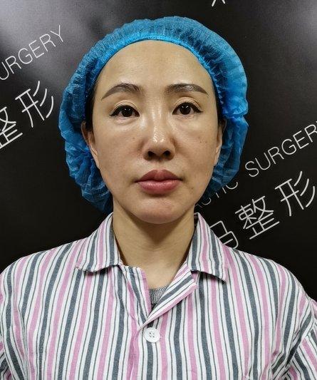 李方奇院长:下巴注射硅油后有什么并发症?