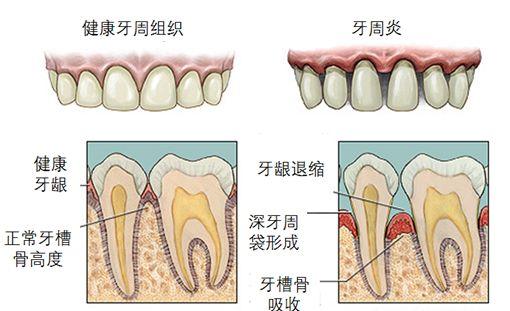 牙周病治疗李腊梅