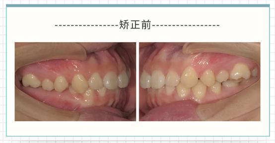 后牙锁合后牙锁颌