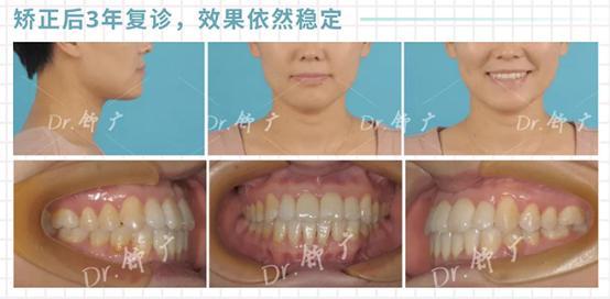 合生齿科隐适美矫正