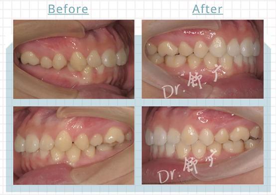 后牙锁颌隐适美矫正