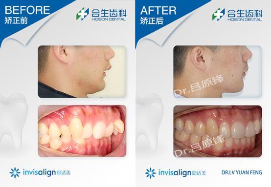 合生齿科牙齿深覆颌隐形矫正