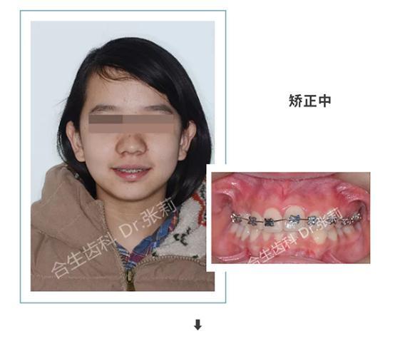 合生齿科张莉博士青少年牙齿矫正