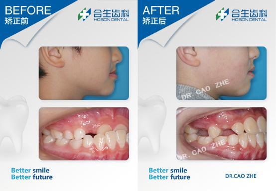 合生齿科儿童牙齿反颌矫正