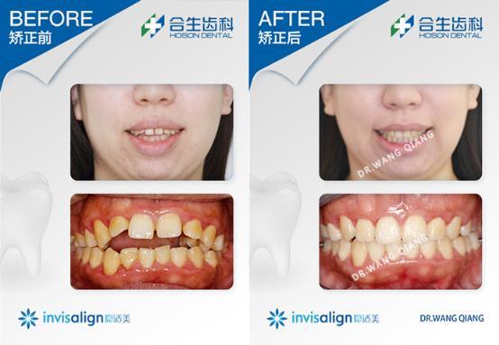 合生齿科隐适美牙齿开颌矫正