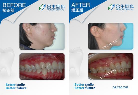 合生齿科牙齿外凸矫正