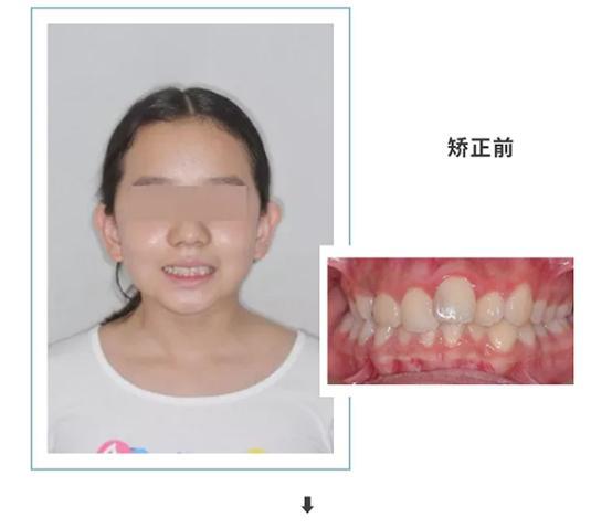 合生齿科张莉博士托槽矫正