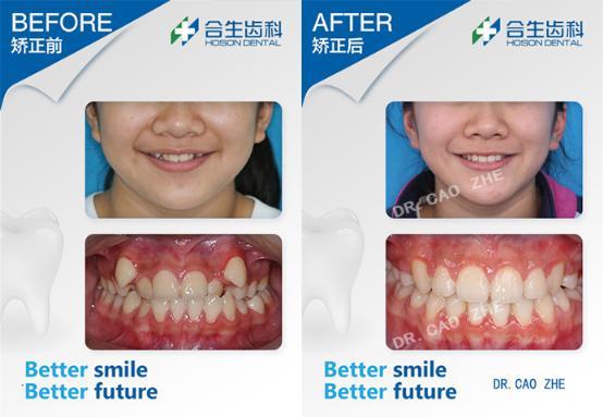 合生齿科虎牙矫正