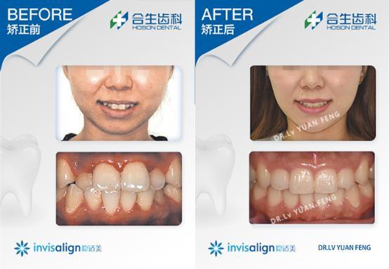 合生齿科牙齿拥挤矫正