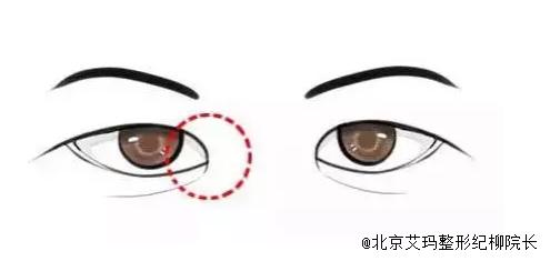 """北京艾玛整形纪柳院长:""""内眦赘皮""""开眼角"""
